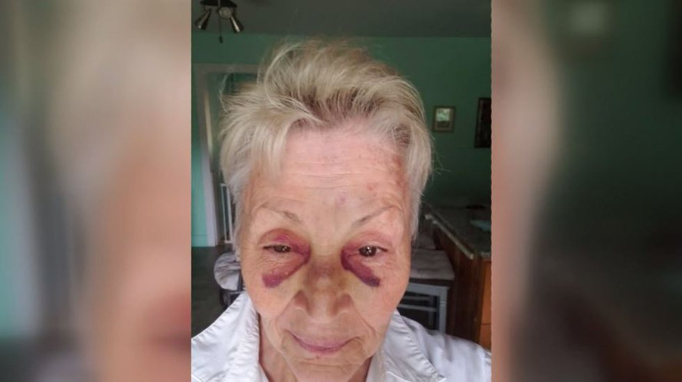 P.K. Shader, 70, sustained injuries to the head and face after police say she was punched...
